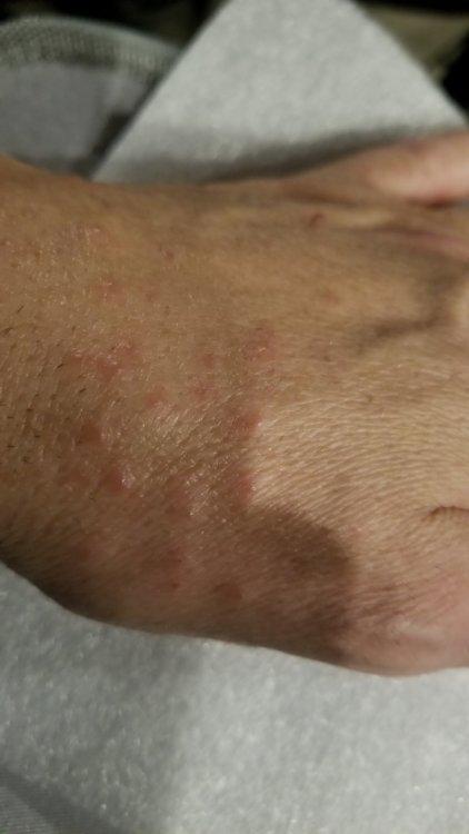 Bumpy Skin.jpg